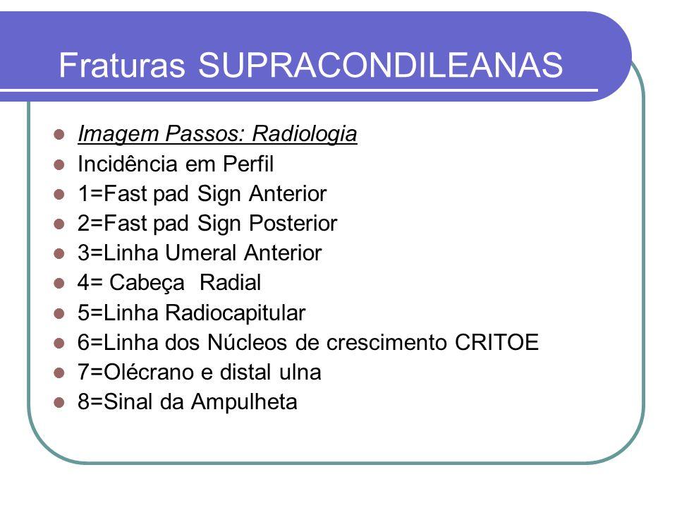 Fraturas SUPRACONDILEANAS Imagem Passos: Radiologia Incidência em Perfil 1=Fast pad Sign Anterior 2=Fast pad Sign Posterior 3=Linha Umeral Anterior 4=