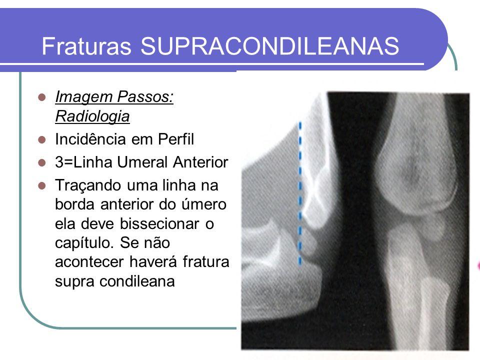 Fraturas SUPRACONDILEANAS Imagem Passos: Radiologia Incidência em Perfil 3=Linha Umeral Anterior Traçando uma linha na borda anterior do úmero ela dev