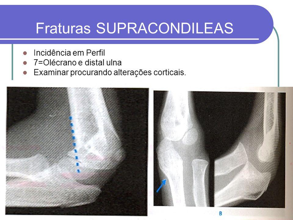Fraturas SUPRACONDILEAS Incidência em Perfil 7=Olécrano e distal ulna Examinar procurando alterações corticais.