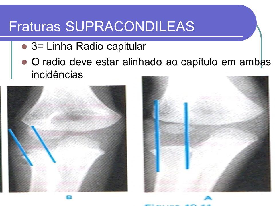 Fraturas SUPRACONDILEAS 3= Linha Radio capitular O radio deve estar alinhado ao capítulo em ambas incidências