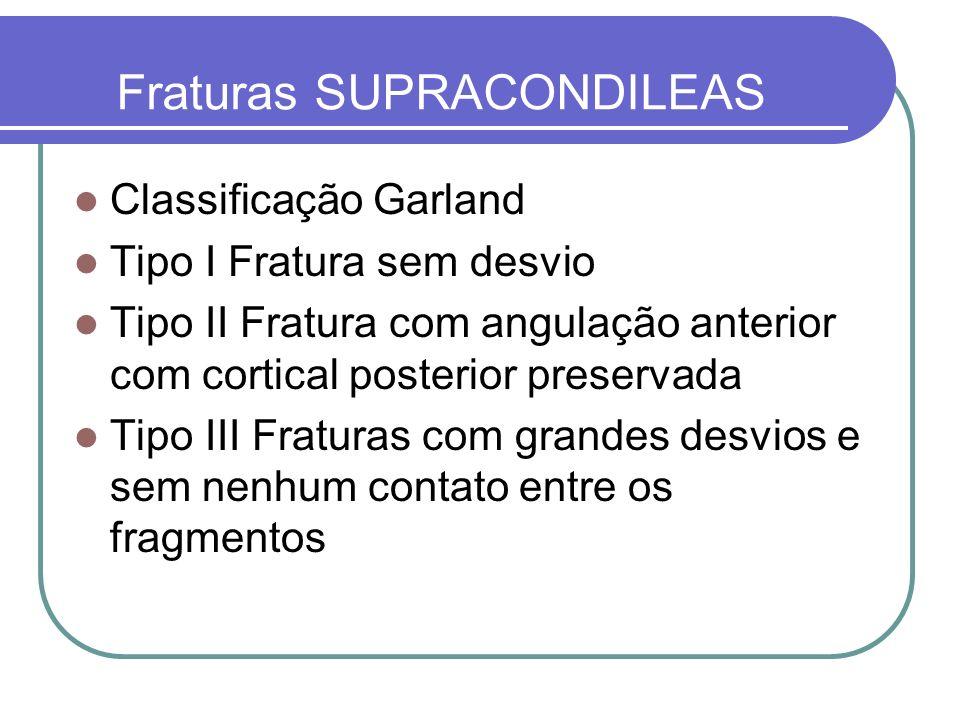 Fraturas SUPRACONDILEAS Classificação Garland Tipo I Fratura sem desvio Tipo II Fratura com angulação anterior com cortical posterior preservada Tipo