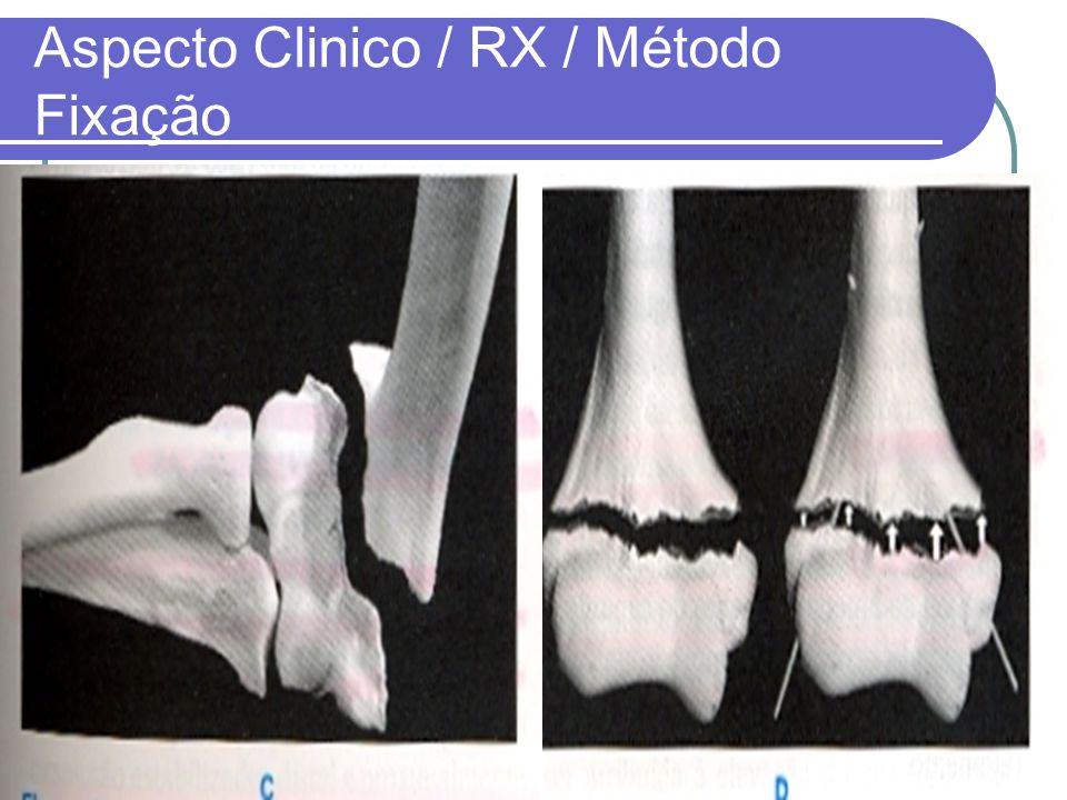 Aspecto Clinico / RX / Método Fixação