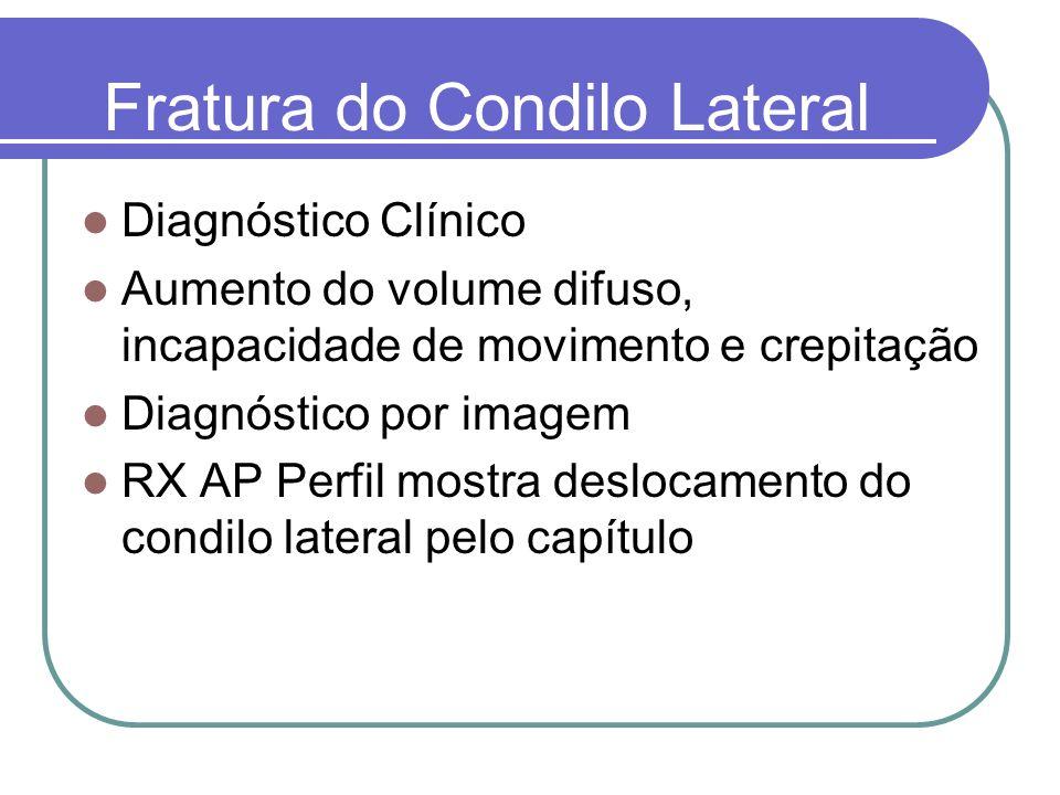 Fratura do Condilo Lateral Diagnóstico Clínico Aumento do volume difuso, incapacidade de movimento e crepitação Diagnóstico por imagem RX AP Perfil mo