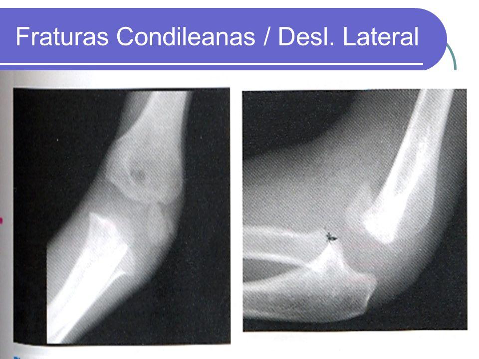 Fraturas Condileanas / Desl. Lateral