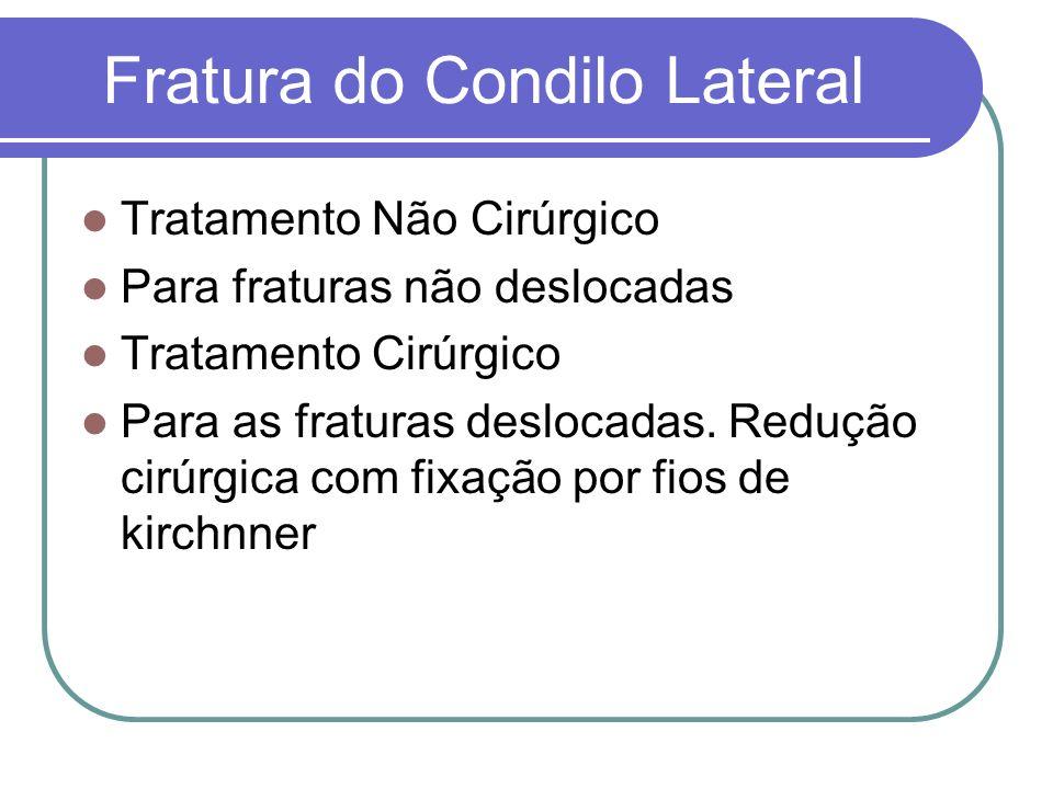 Fratura do Condilo Lateral Tratamento Não Cirúrgico Para fraturas não deslocadas Tratamento Cirúrgico Para as fraturas deslocadas. Redução cirúrgica c