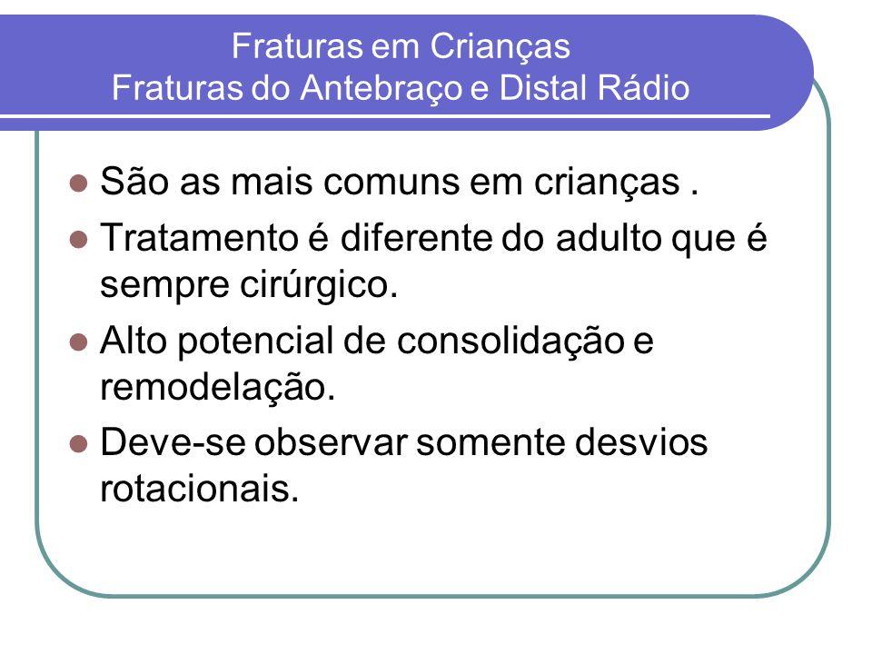 Fraturas em Crianças Fraturas do Antebraço e Distal Rádio São as mais comuns em crianças. Tratamento é diferente do adulto que é sempre cirúrgico. Alt