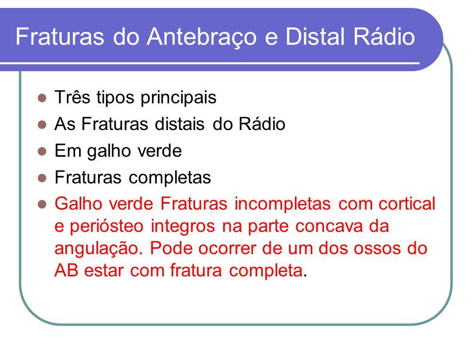Fraturas do Antebraço e Distal Rádio Três tipos principais As Fraturas distais do Rádio Em galho verde Fraturas completas Galho verde Fraturas incompl