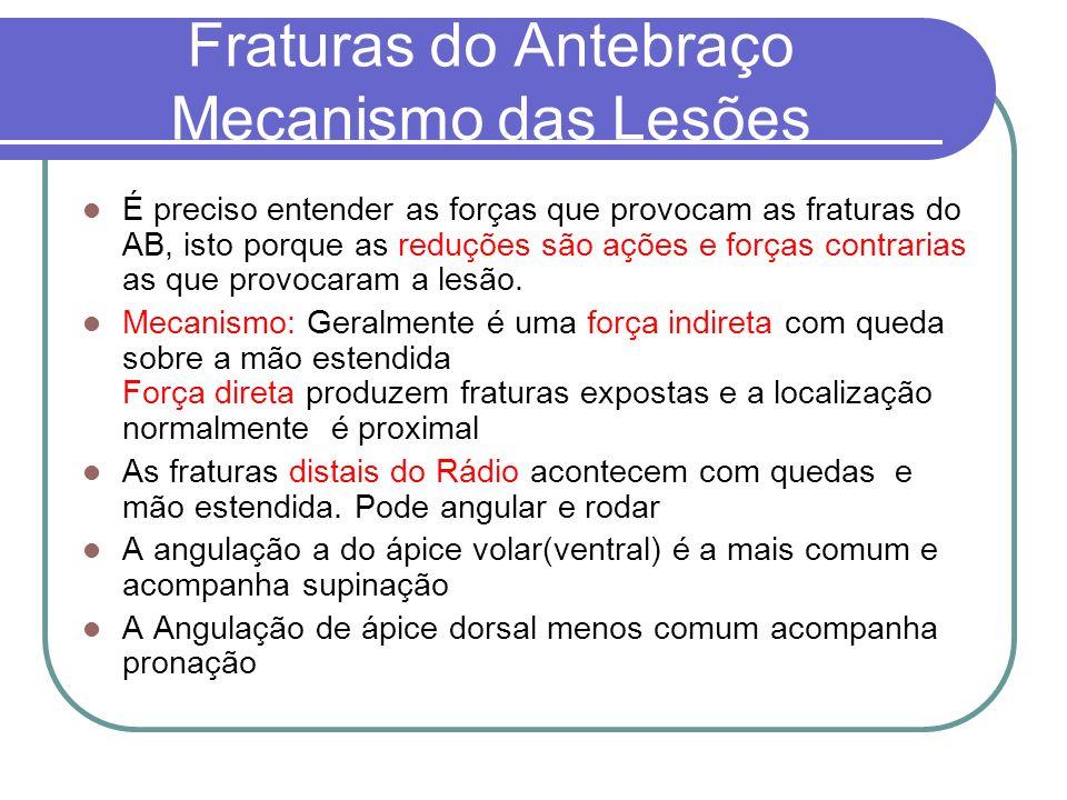 Fraturas do Antebraço Mecanismo das Lesões É preciso entender as forças que provocam as fraturas do AB, isto porque as reduções são ações e forças con