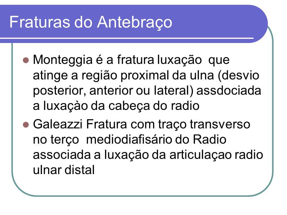 Fraturas do Antebraço Monteggia é a fratura luxação que atinge a região proximal da ulna (desvio posterior, anterior ou lateral) assdociada a luxaçào
