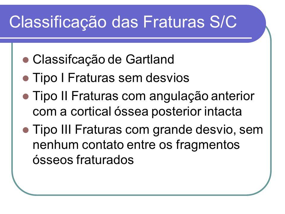 Classificação das Fraturas S/C Classifcação de Gartland Tipo I Fraturas sem desvios Tipo II Fraturas com angulação anterior com a cortical óssea poste