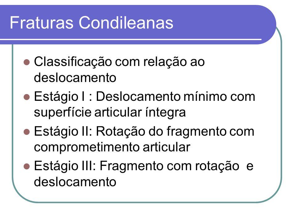 Fraturas Condileanas Classificação com relação ao deslocamento Estágio I : Deslocamento mínimo com superfície articular íntegra Estágio II: Rotação do