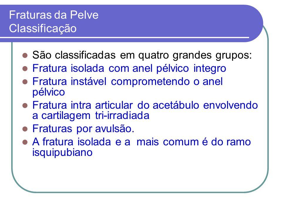 Fraturas da Pelve Classificação São classificadas em quatro grandes grupos: Fratura isolada com anel pélvico integro Fratura instável comprometendo o