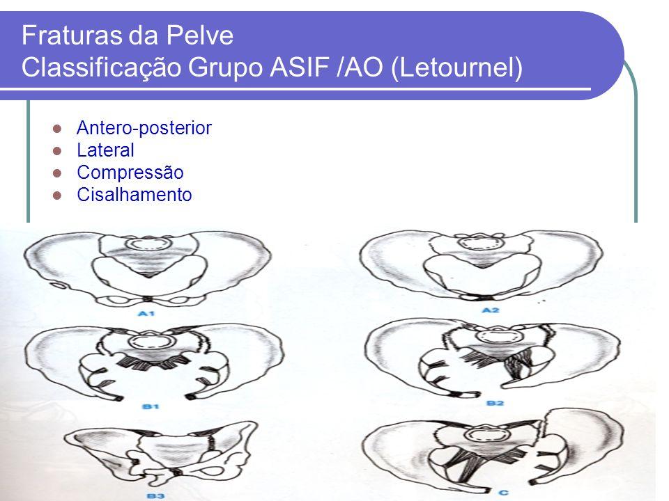 Fraturas da Pelve Classificação Grupo ASIF /AO (Letournel) Antero-posterior Lateral Compressão Cisalhamento