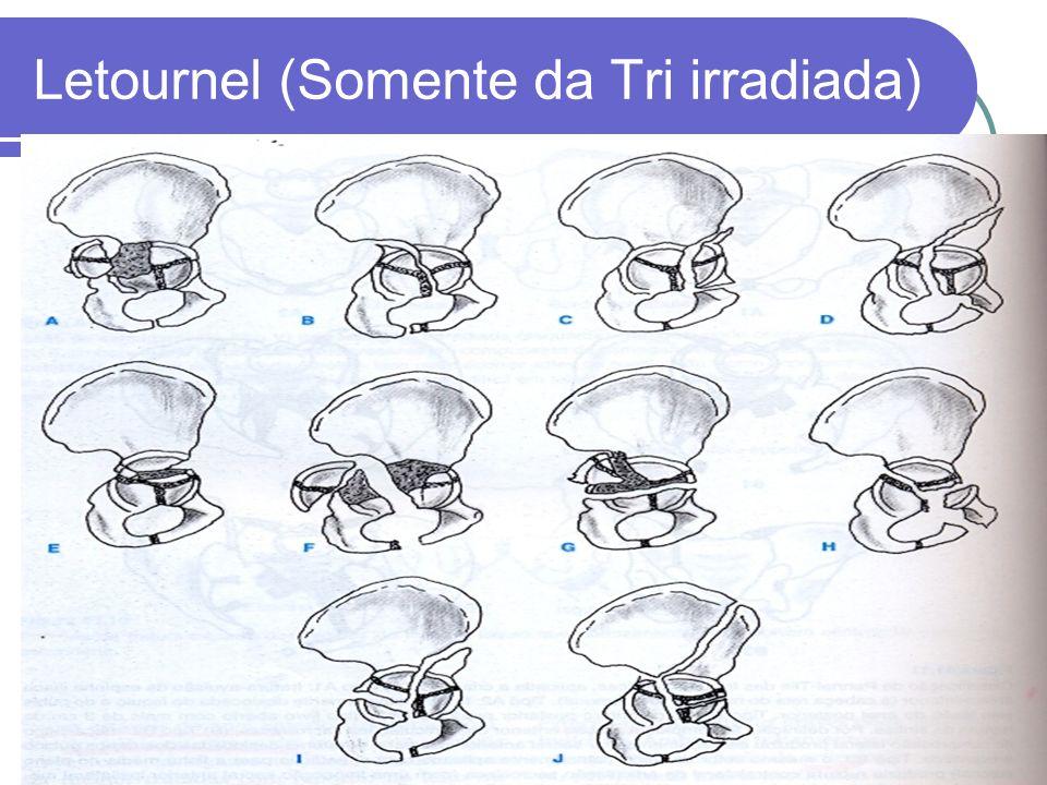 Letournel (Somente da Tri irradiada)