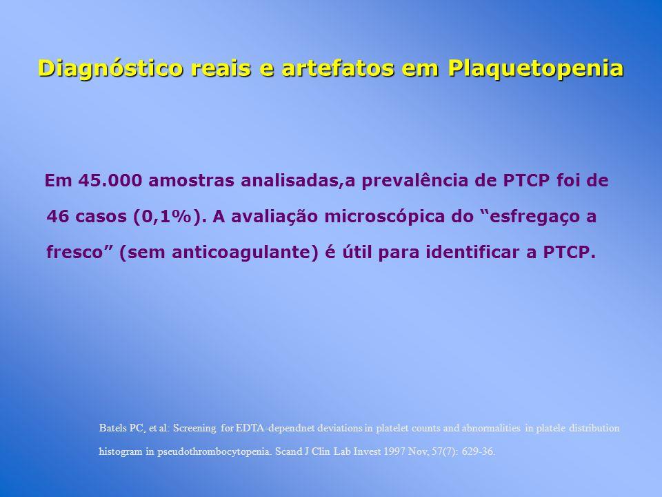 Diagnóstico reais e artefatos em Plaquetopenia Em 45.000 amostras analisadas,a prevalência de PTCP foi de 46 casos (0,1%). A avaliação microscópica do