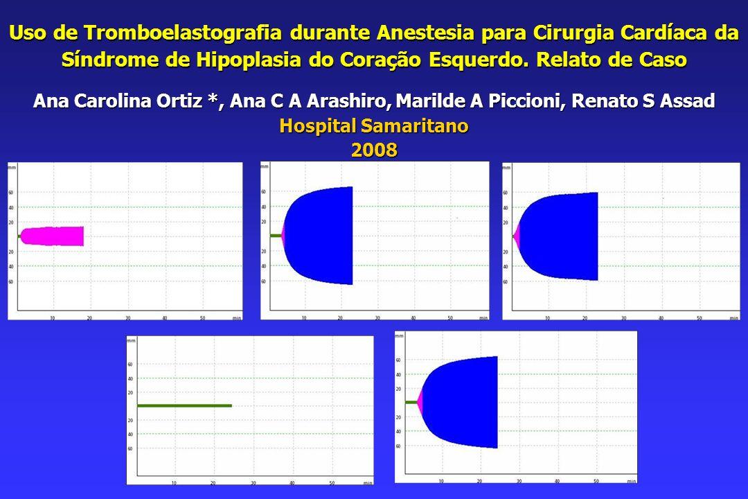 Uso de Tromboelastografia durante Anestesia para Cirurgia Cardíaca da Síndrome de Hipoplasia do Coração Esquerdo.