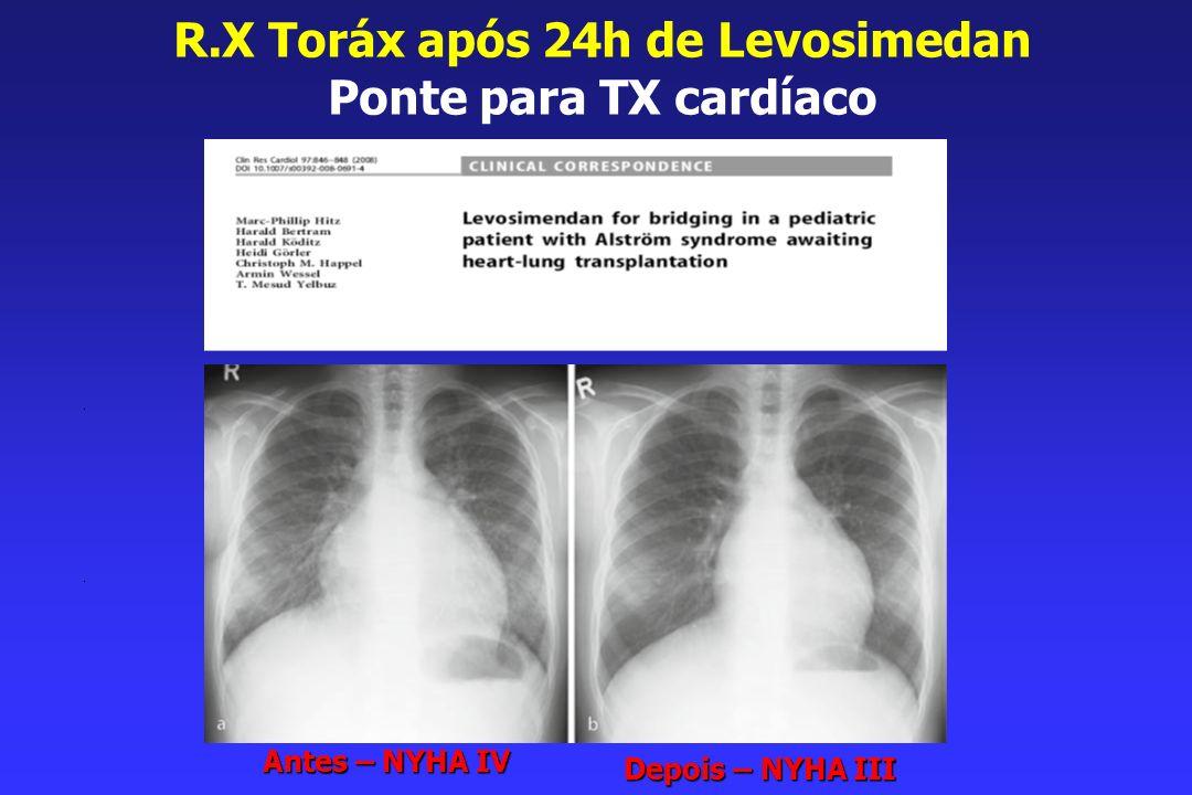R.X Toráx após 24h de Levosimedan Ponte para TX cardíaco Antes – NYHA IV Depois – NYHA III