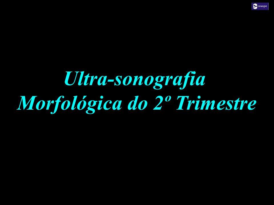 Ultra-sonografia Morfológica do 2º Trimestre Ultra-sonografia Morfológica do 2º Trimestre