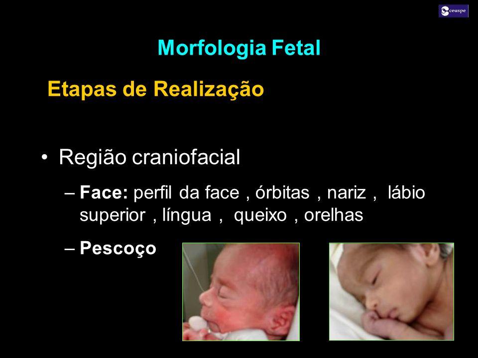 Região craniofacial –Face: perfil da face, órbitas, nariz, lábio superior, língua, queixo, orelhas –Pescoço Região craniofacial –Face: perfil da face,