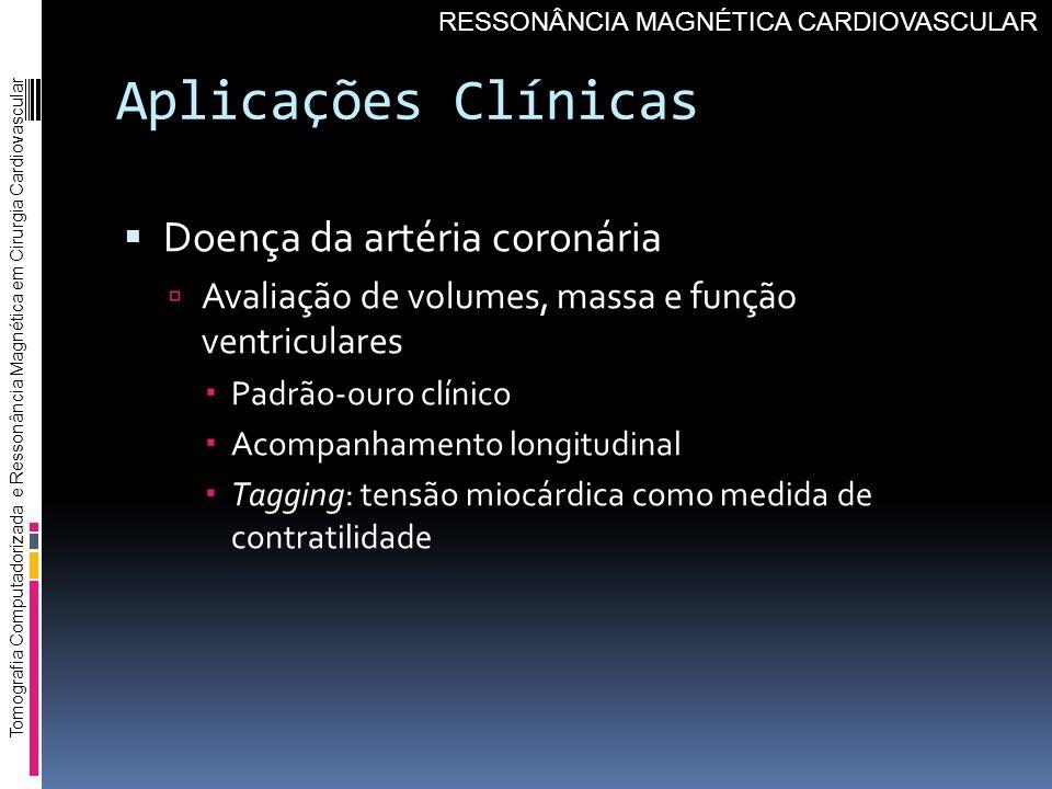 Aplicações Clínicas Doença da artéria coronária Avaliação de volumes, massa e função ventriculares Padrão-ouro clínico Acompanhamento longitudinal Tag