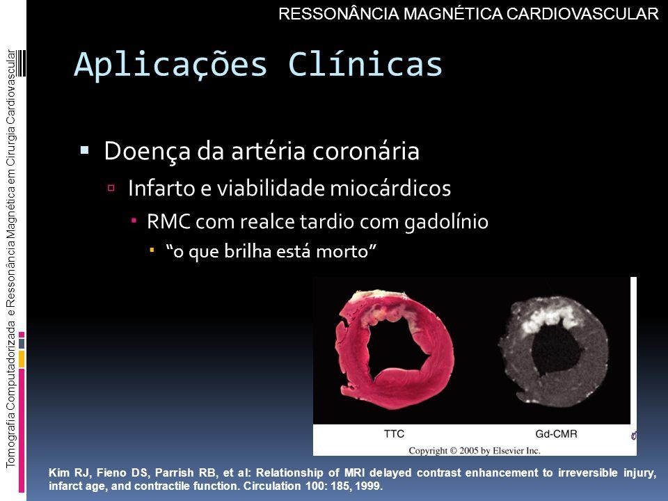 Aplicações Clínicas Doença da artéria coronária Infarto e viabilidade miocárdicos RMC com realce tardio com gadolínio o que brilha está morto Tomograf