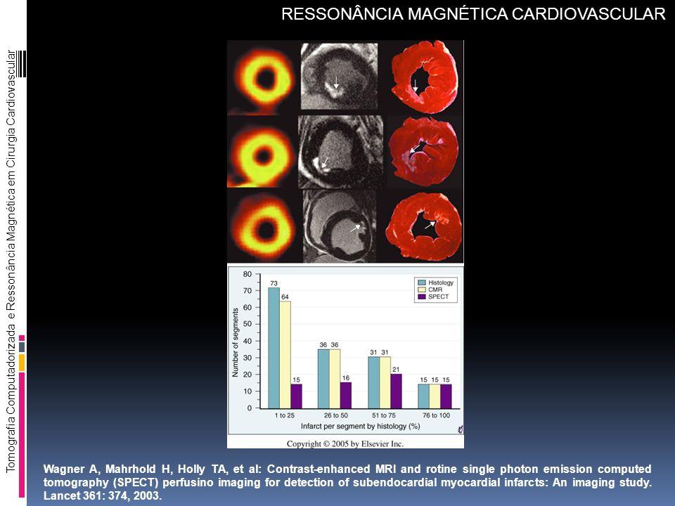Tomografia Computadorizada e Ressonância Magnética em Cirurgia Cardiovascular RESSONÂNCIA MAGNÉTICA CARDIOVASCULAR Wagner A, Mahrhold H, Holly TA, et