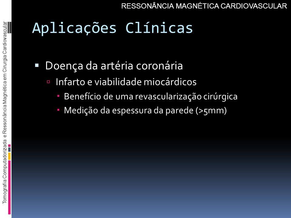 Aplicações Clínicas Doença da artéria coronária Infarto e viabilidade miocárdicos Benefício de uma revascularização cirúrgica Medição da espessura da