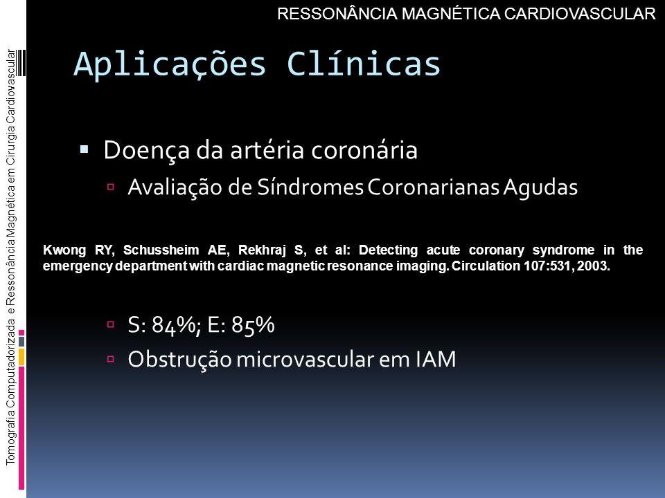 Aplicações Clínicas Doença da artéria coronária Avaliação de Síndromes Coronarianas Agudas S: 84%; E: 85% Obstrução microvascular em IAM Tomografia Co