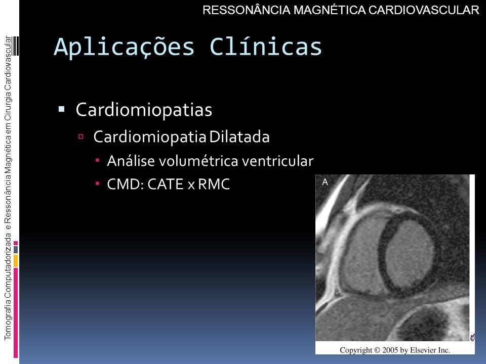 Aplicações Clínicas Cardiomiopatias Cardiomiopatia Dilatada Análise volumétrica ventricular CMD: CATE x RMC Tomografia Computadorizada e Ressonância M