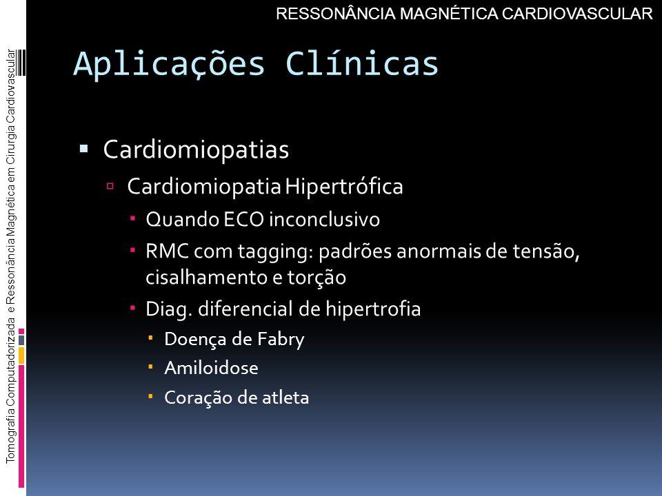 Aplicações Clínicas Cardiomiopatias Cardiomiopatia Hipertrófica Quando ECO inconclusivo RMC com tagging: padrões anormais de tensão, cisalhamento e to