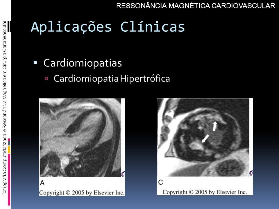 Aplicações Clínicas Cardiomiopatias Cardiomiopatia Hipertrófica Tomografia Computadorizada e Ressonância Magnética em Cirurgia Cardiovascular RESSONÂN