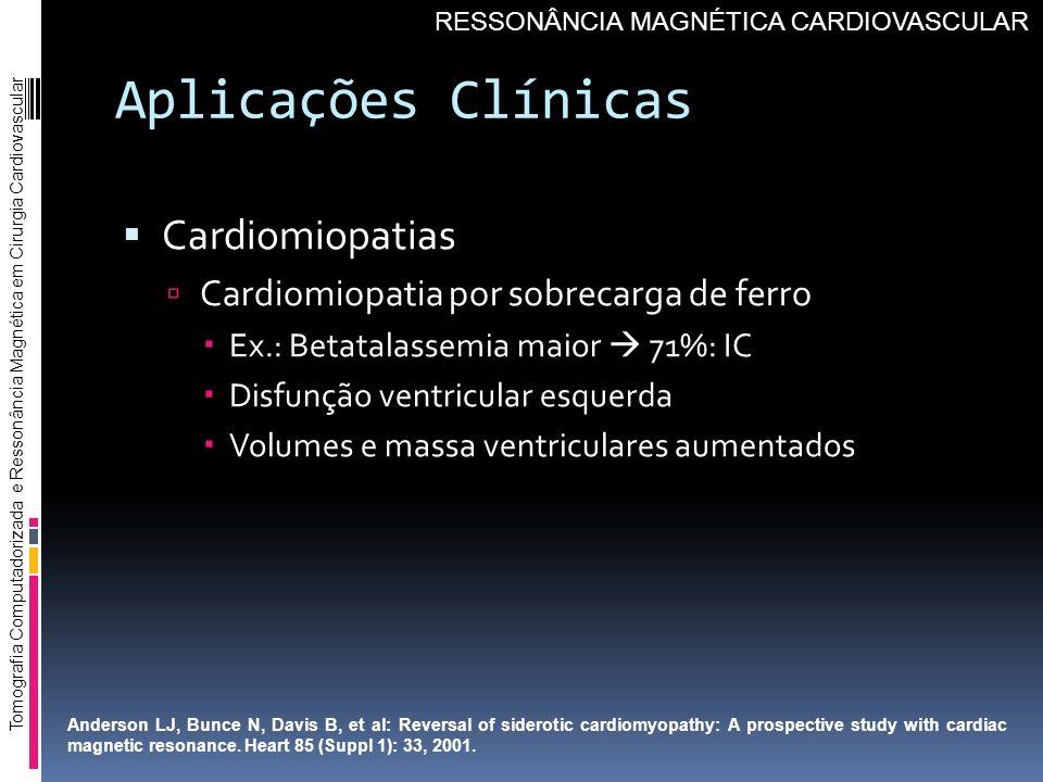 Aplicações Clínicas Cardiomiopatias Cardiomiopatia por sobrecarga de ferro Ex.: Betatalassemia maior 71%: IC Disfunção ventricular esquerda Volumes e