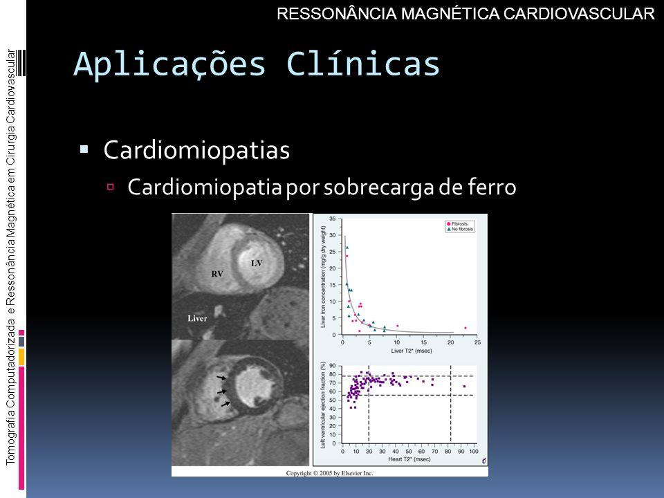 Aplicações Clínicas Cardiomiopatias Cardiomiopatia por sobrecarga de ferro Tomografia Computadorizada e Ressonância Magnética em Cirurgia Cardiovascul