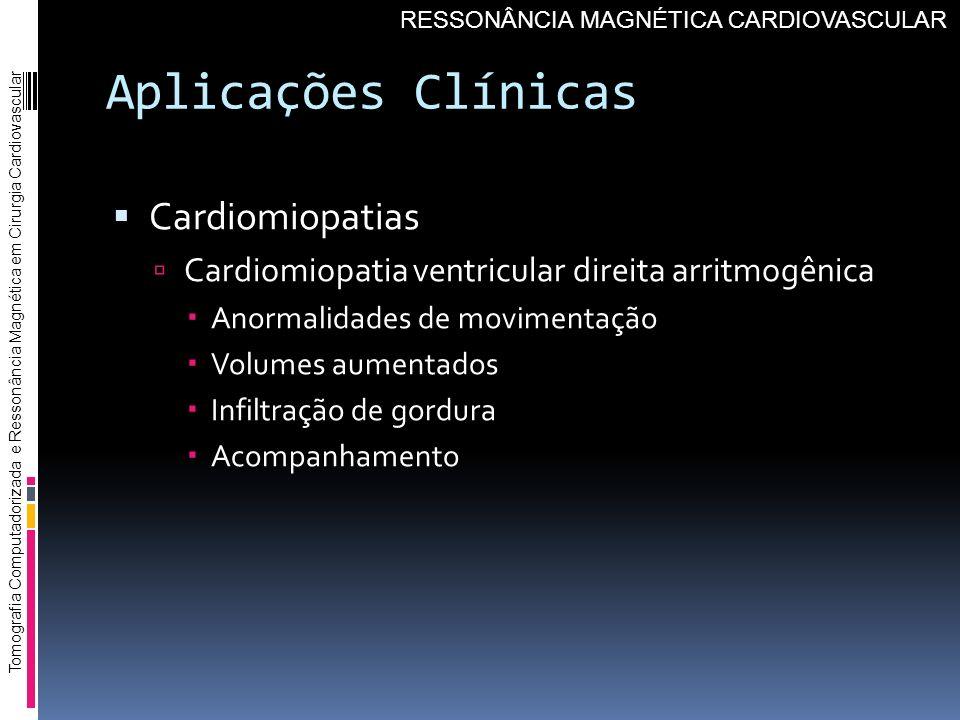 Aplicações Clínicas Cardiomiopatias Cardiomiopatia ventricular direita arritmogênica Anormalidades de movimentação Volumes aumentados Infiltração de g