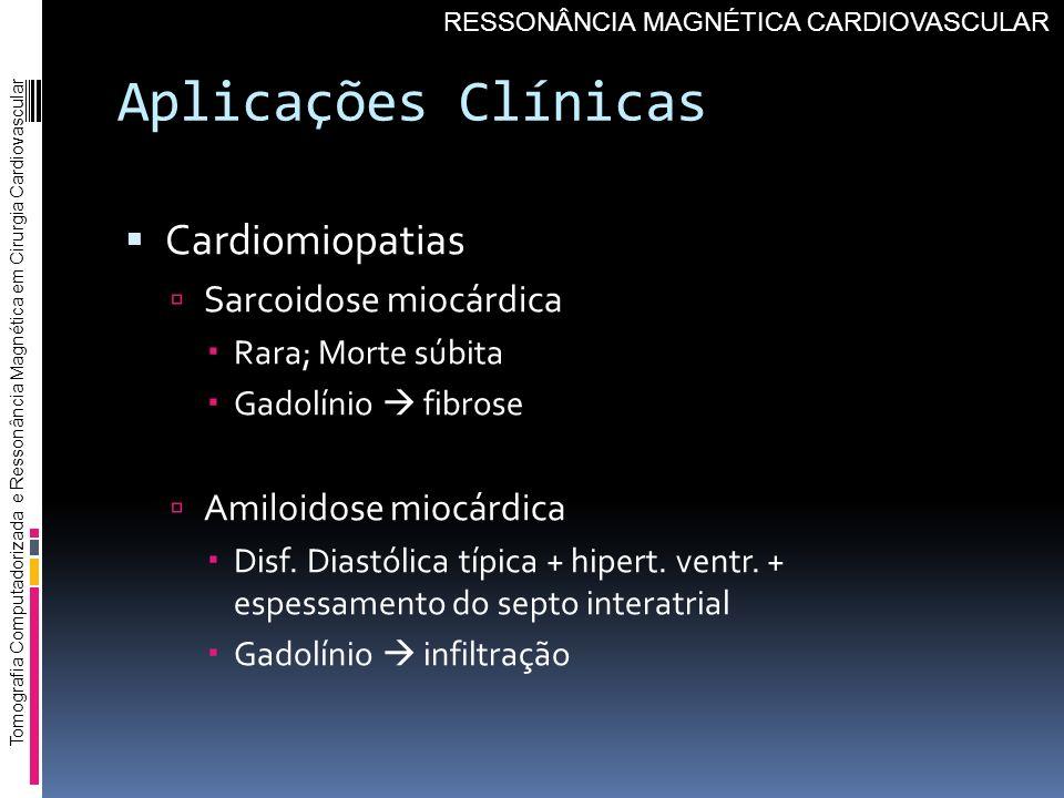 Aplicações Clínicas Cardiomiopatias Sarcoidose miocárdica Rara; Morte súbita Gadolínio fibrose Amiloidose miocárdica Disf. Diastólica típica + hipert.