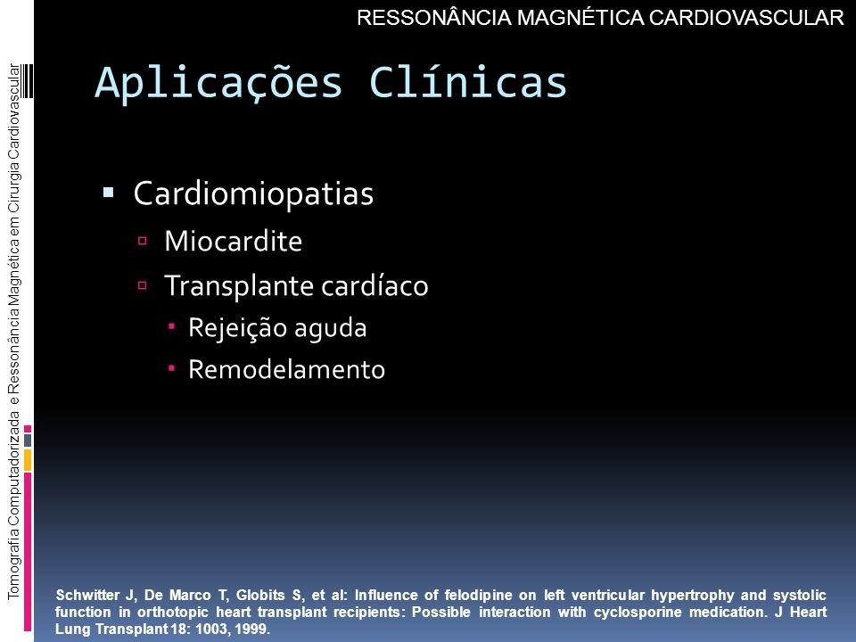 Aplicações Clínicas Cardiomiopatias Miocardite Transplante cardíaco Rejeição aguda Remodelamento Tomografia Computadorizada e Ressonância Magnética em