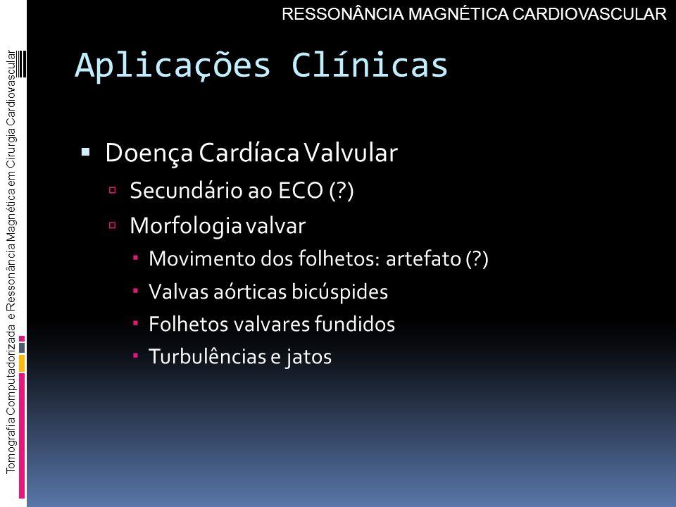 Aplicações Clínicas Doença Cardíaca Valvular Secundário ao ECO (?) Morfologia valvar Movimento dos folhetos: artefato (?) Valvas aórticas bicúspides F