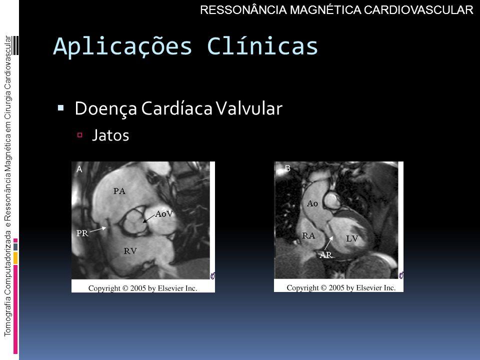 Aplicações Clínicas Doença Cardíaca Valvular Jatos Tomografia Computadorizada e Ressonância Magnética em Cirurgia Cardiovascular RESSONÂNCIA MAGNÉTICA