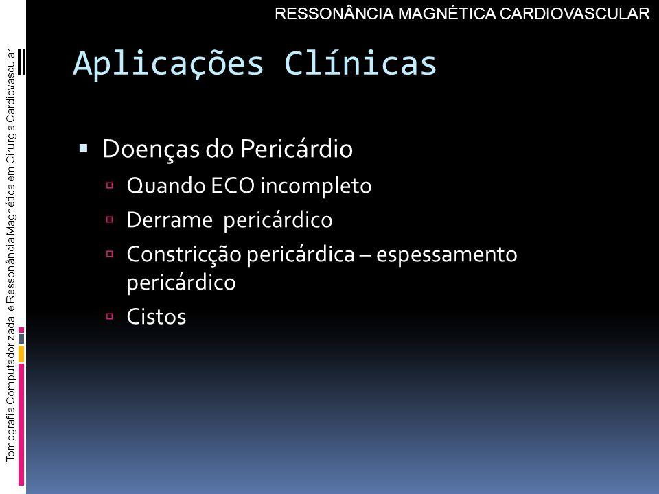 Aplicações Clínicas Doenças do Pericárdio Quando ECO incompleto Derrame pericárdico Constricção pericárdica – espessamento pericárdico Cistos Tomograf