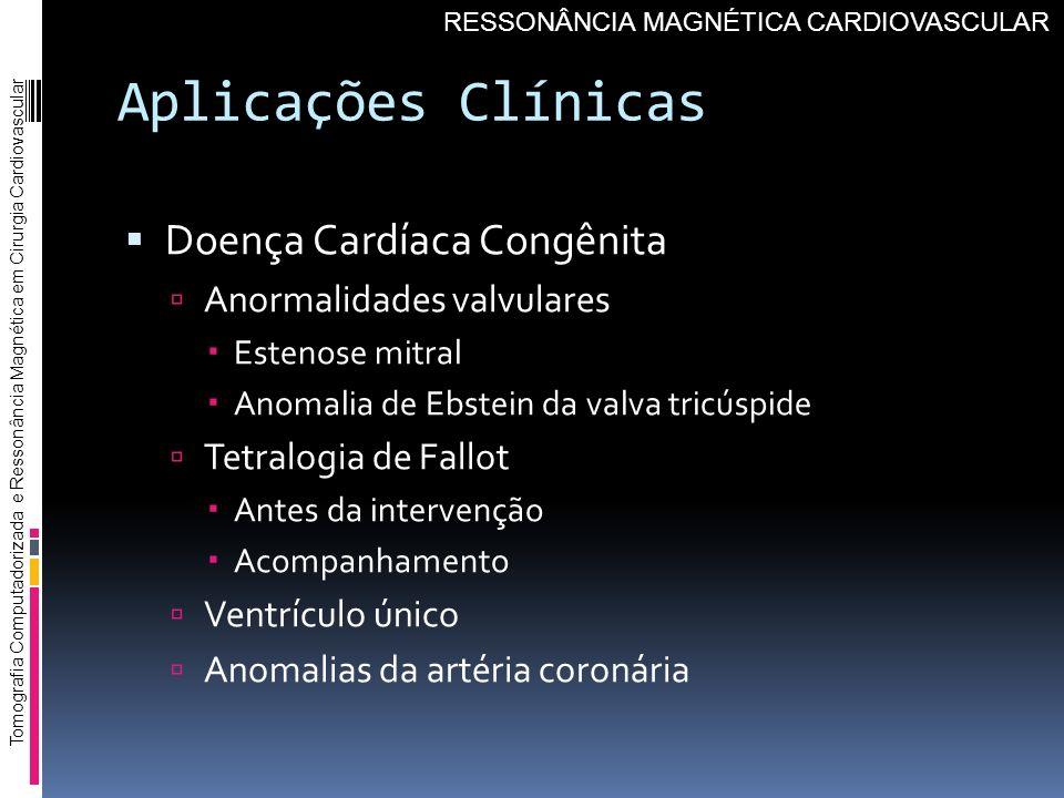 Aplicações Clínicas Doença Cardíaca Congênita Anormalidades valvulares Estenose mitral Anomalia de Ebstein da valva tricúspide Tetralogia de Fallot An
