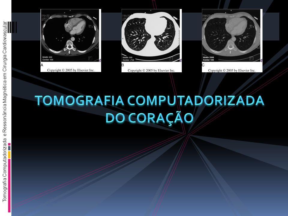 Tomografia Computadorizada e Ressonância Magnética em Cirurgia Cardiovascular