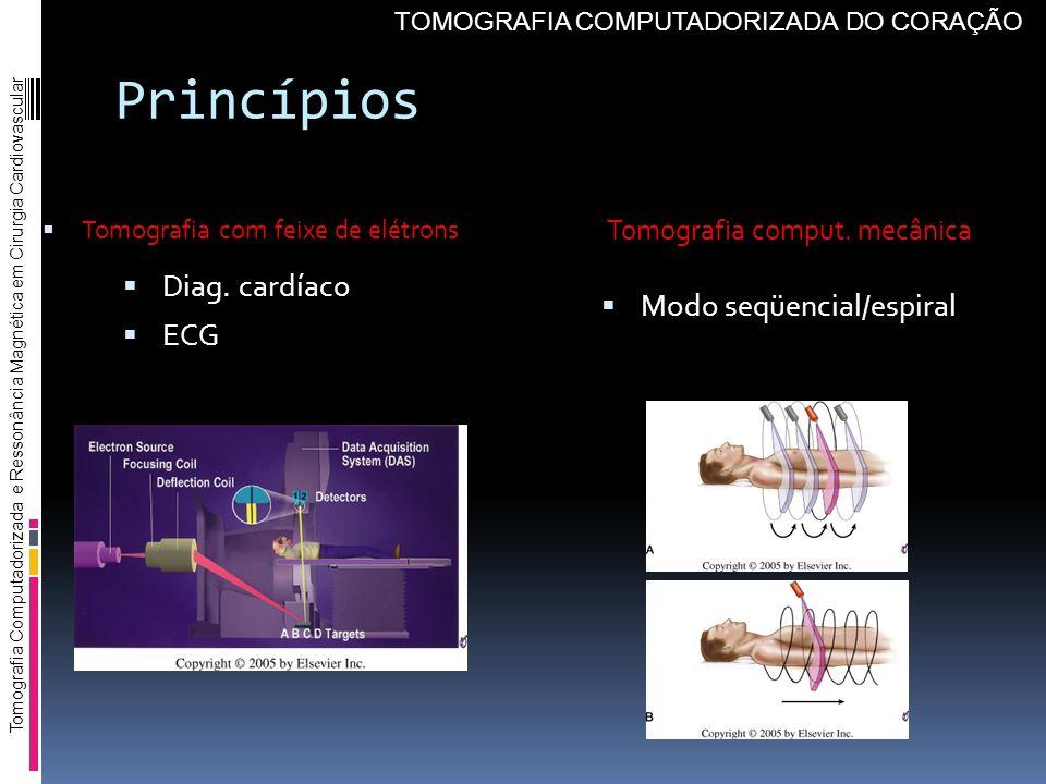 Princípios Diag. cardíaco ECG Tomografia comput. mecânica Modo seqüencial/espiral Tomografia com feixe de elétrons Tomografia Computadorizada e Resson