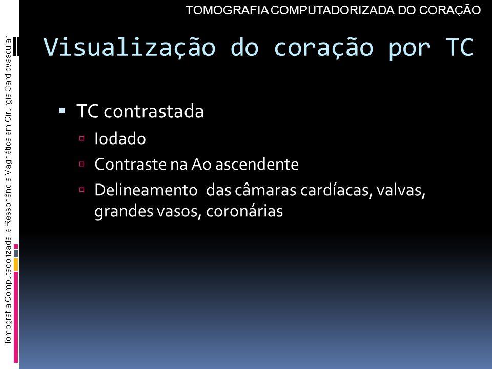 Visualização do coração por TC TC contrastada Iodado Contraste na Ao ascendente Delineamento das câmaras cardíacas, valvas, grandes vasos, coronárias