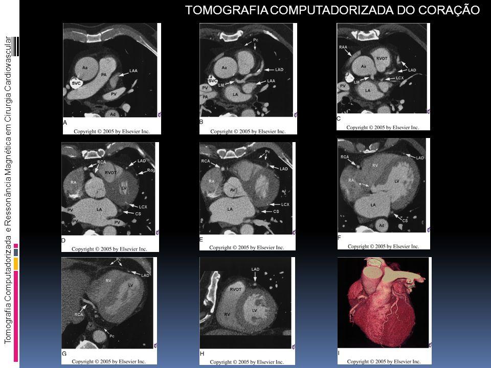 Tomografia Computadorizada e Ressonância Magnética em Cirurgia Cardiovascular TOMOGRAFIA COMPUTADORIZADA DO CORAÇÃO