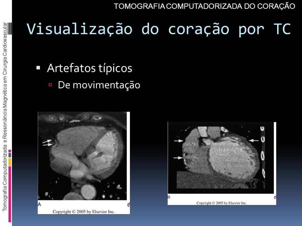 Visualização do coração por TC Artefatos típicos De movimentação Tomografia Computadorizada e Ressonância Magnética em Cirurgia Cardiovascular TOMOGRA