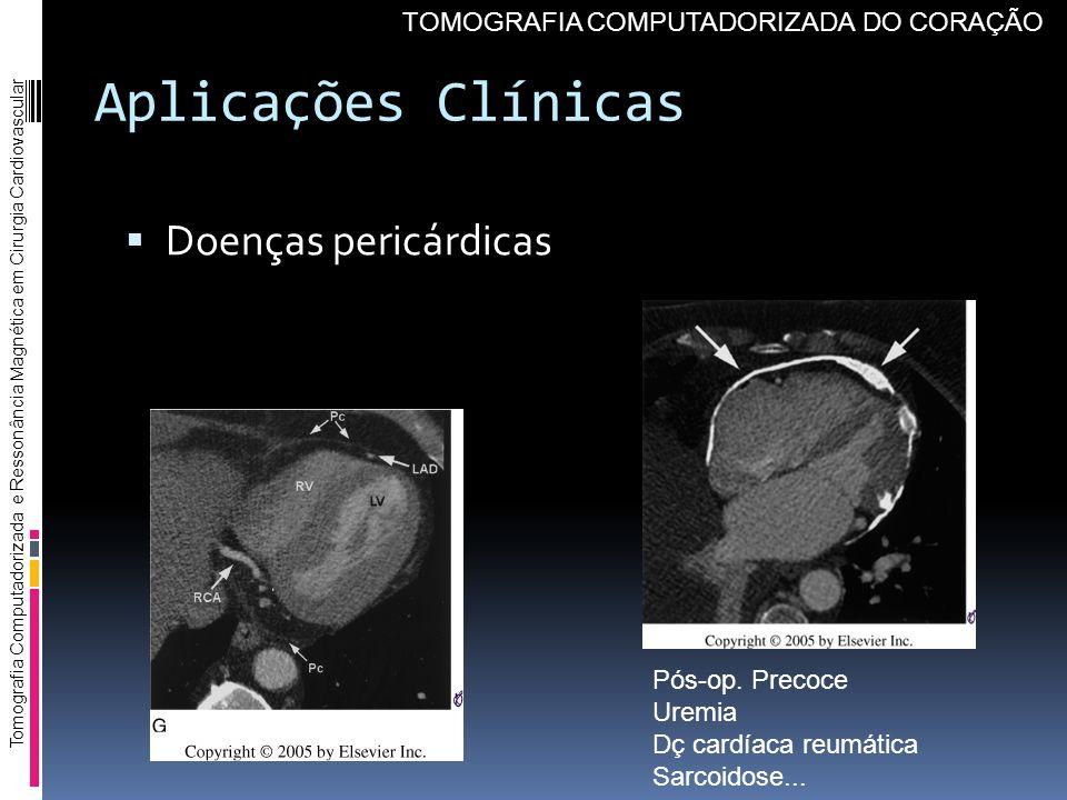 Aplicações Clínicas Doenças pericárdicas Tomografia Computadorizada e Ressonância Magnética em Cirurgia Cardiovascular TOMOGRAFIA COMPUTADORIZADA DO C