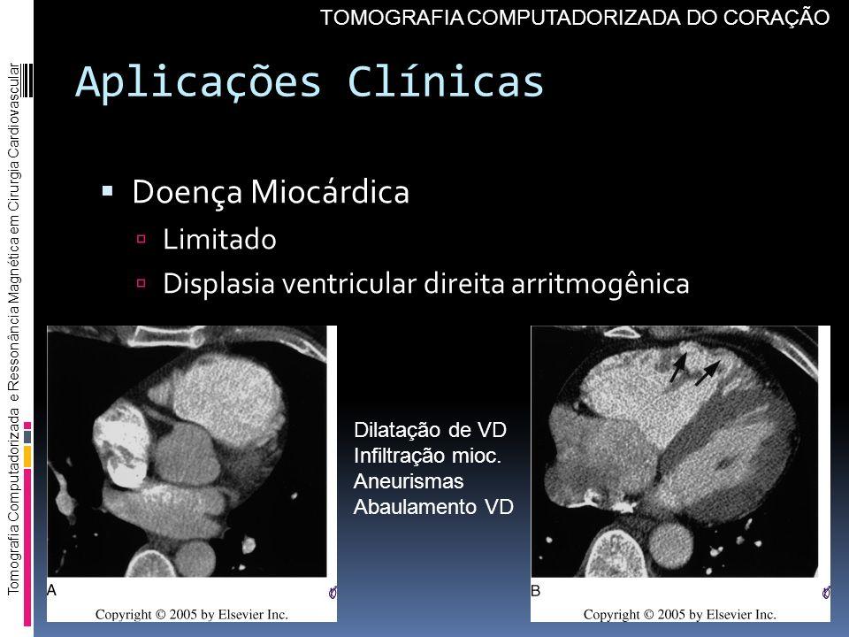 Aplicações Clínicas Doença Miocárdica Limitado Displasia ventricular direita arritmogênica Tomografia Computadorizada e Ressonância Magnética em Cirur