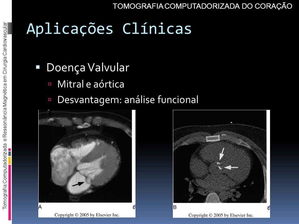 Aplicações Clínicas Doença Valvular Mitral e aórtica Desvantagem: análise funcional Tomografia Computadorizada e Ressonância Magnética em Cirurgia Car