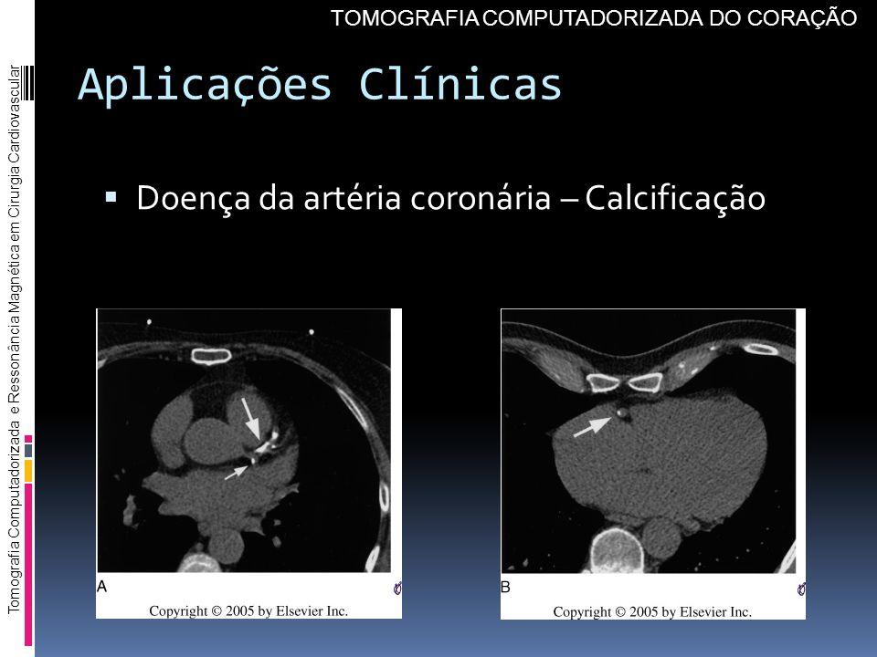 Aplicações Clínicas Doença da artéria coronária – Calcificação Tomografia Computadorizada e Ressonância Magnética em Cirurgia Cardiovascular TOMOGRAFI