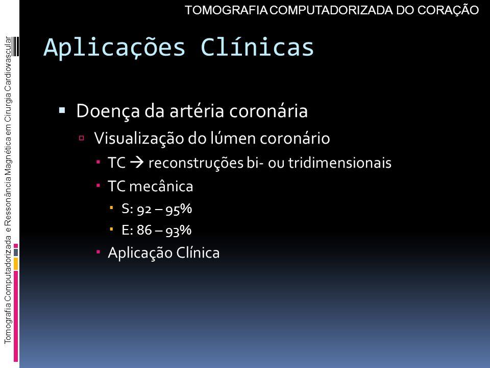 Aplicações Clínicas Doença da artéria coronária Visualização do lúmen coronário TC reconstruções bi- ou tridimensionais TC mecânica S: 92 – 95% E: 86